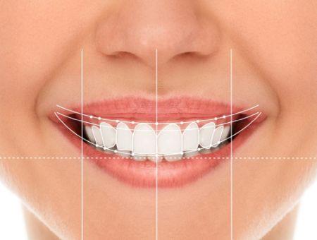 projektowanie uśmiechu